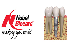 nobel-biocare-implants-maredent-dental-clinic-europe-croatia